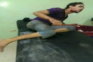 Anciano hiere asaltante de un balazo en la boca tras despojarlo de 120 pesos
