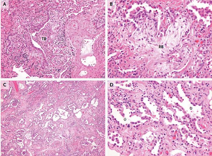 neumonitis intersticial linfocítica emedicina diabetes