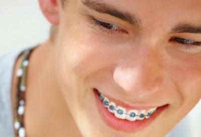 Niềng răng người lớn như thế nào?