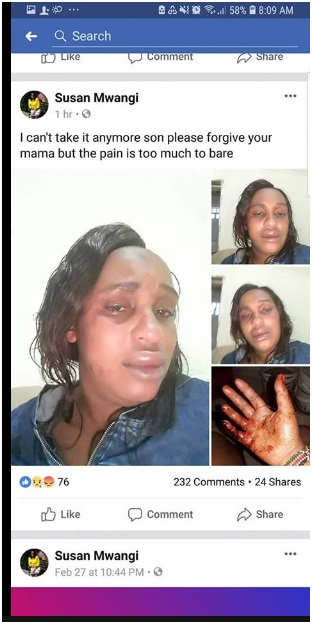 sue%2B1 - SHOCK as Kikuyu LADY posts suicide note on facebook and shares the injuries her abusive husband inflicted on her(PHOTOs)