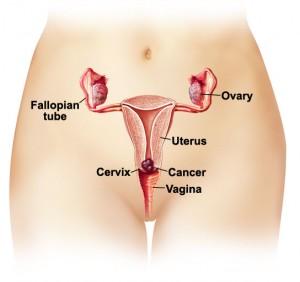 Gambar Penyakit Kanker Serviks