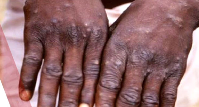What Exactly is Monkeypox? History, Transmission, symptoms, Prevention