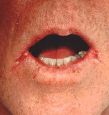 tratamiento para hombres por candidiasis