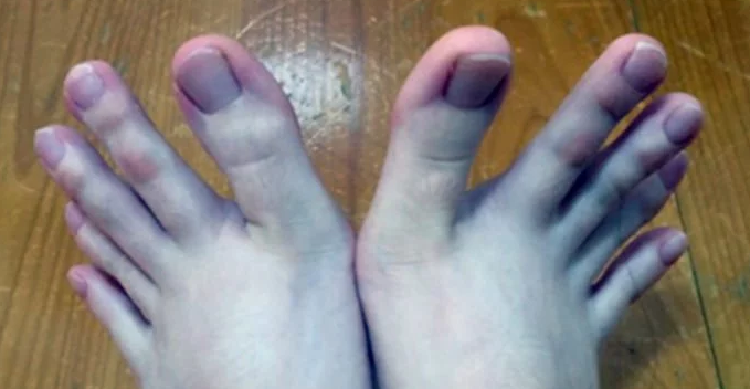 Everyone Is Obsessed With This Woman's Feet, Here's Why