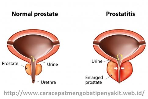 Cara Cepat Mengobati Radang Prostat dengan Ampuh