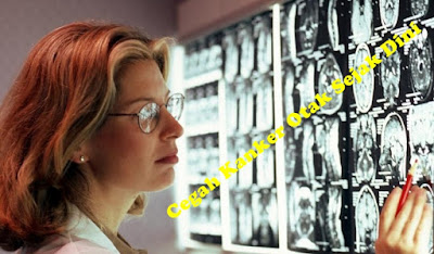 Mengenali Penyakit Kanker Otak Stadium 2