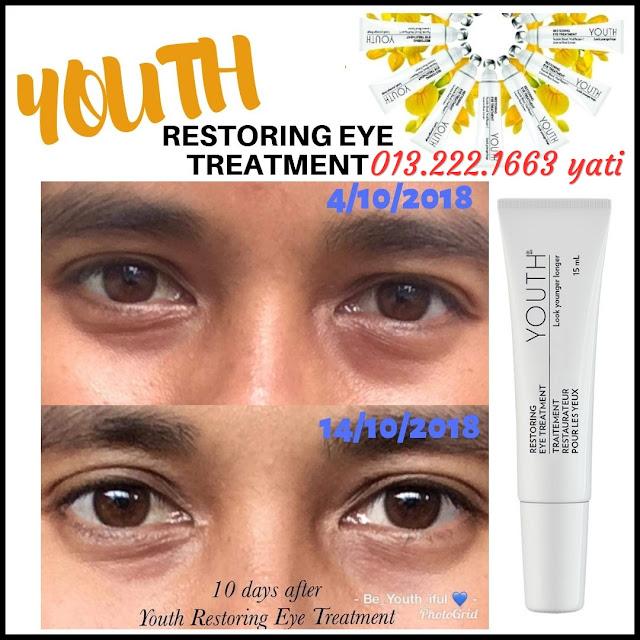 Testimoni-Youth-Eye-Treatment-Shaklee