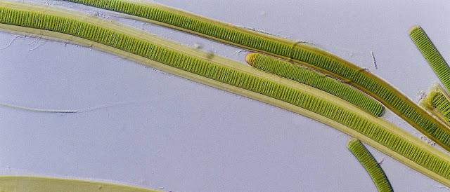 Cianobacterias y celulas procariotas