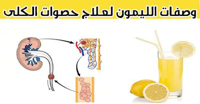 وصفات رائعة في أول اليوم تنظف الكلى وتفتت أي حصى بها بإستخدام الليمون