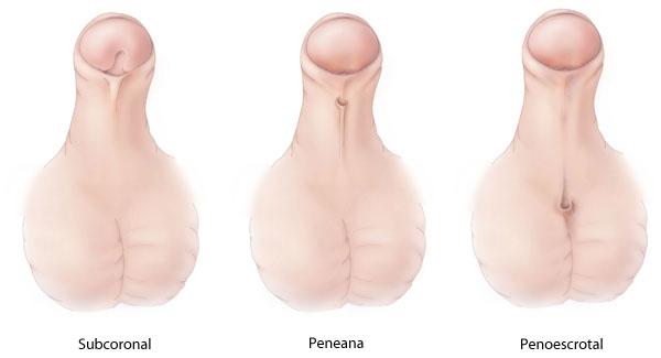 enfermedades en el tronco del pene