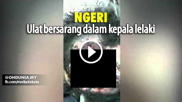 Video: Ngeri, Ulat Bersarang Dalam Kepala Lelaki Yang Masih Sedar