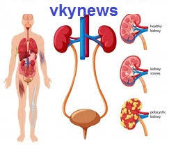All Natural Kidney and Health Kidney Function Restoration