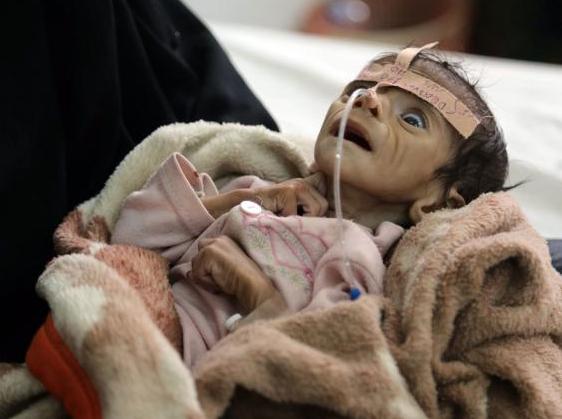 Τρομερή ανθρωπιστική καταστροφή στην Υεμένη