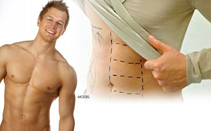 Gynecomastia surgery Cosmetic Plastic Surgery for Men in India Kolkata. Best results by Dr Srinjoy Saha
