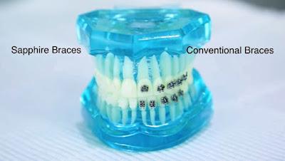Aparatul dentar safir