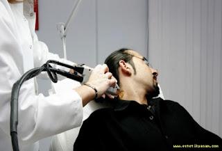 boyun ve ense bölgesine uygulanan laser epilasyon uygulamaları