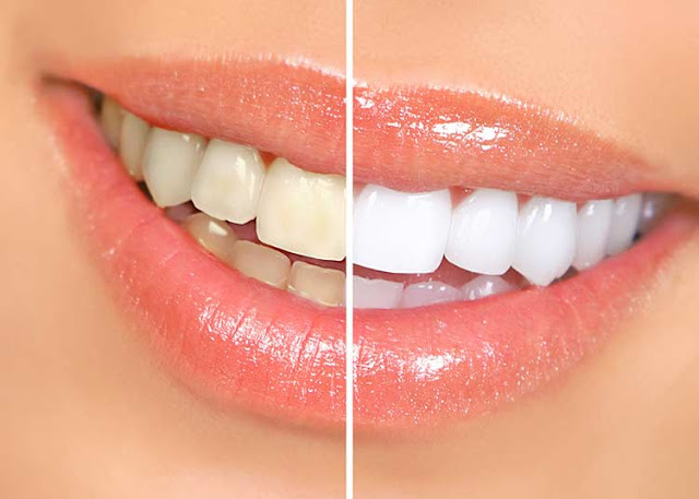5 Natural Ways to Sparkle Your Teeth