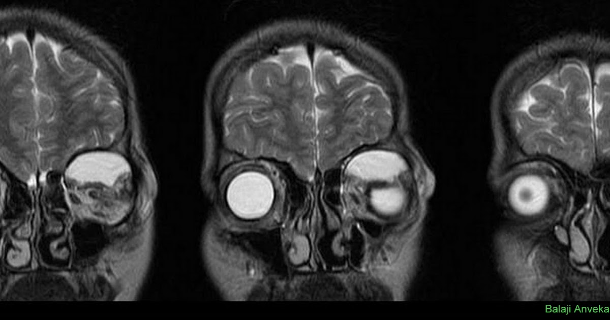 Dr Balaji Anvekar S Neuroradiology Cases Orbital