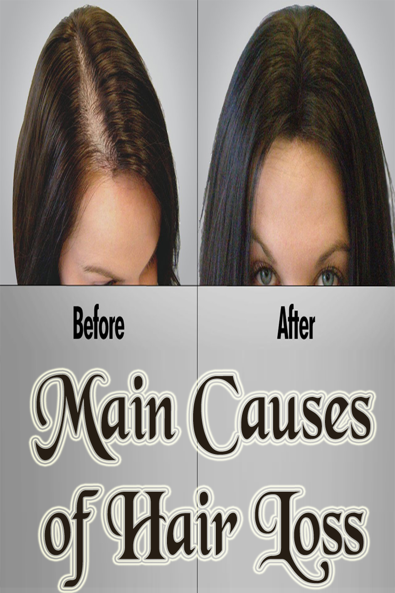 Main Causes of Hair Loss