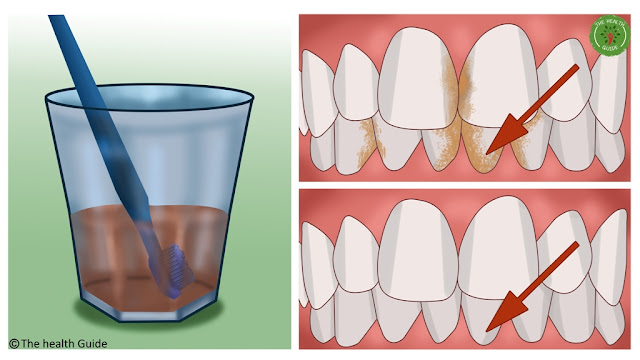 Remove Tartar, Clean Plaque And Destroy The Bacteria In Your Mouth With Just One Ingredient