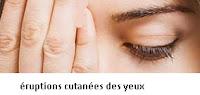 Remèdes pour éruptions cutanées des yeux