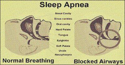 pareri medicale sindrom apnee in somn complicatii si tratament