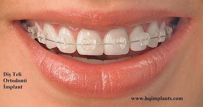 En iyi diş teli