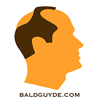 Male Pattern Baldness Stage 5 Hair Loss