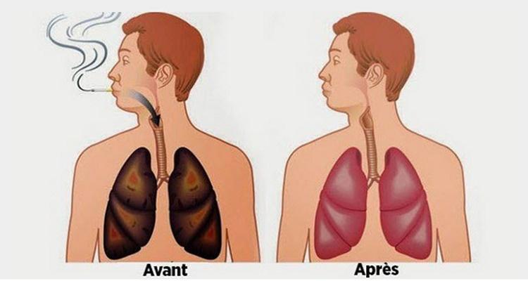 طريقة علمية جديدة خاصة بالمدخنين تنظيف الرئتين بـ 3 أيام فقط