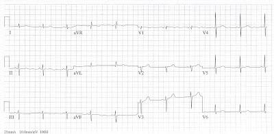 Acute Care: Ecg In Emergency Medicine And Acute Care
