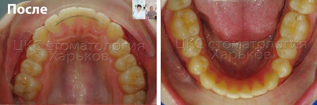 Верхний и нижний зубные ряды после ортодонтического лечения