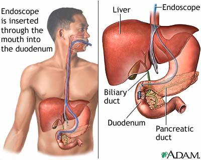 ERCP-pada-obstruksi-biliaris