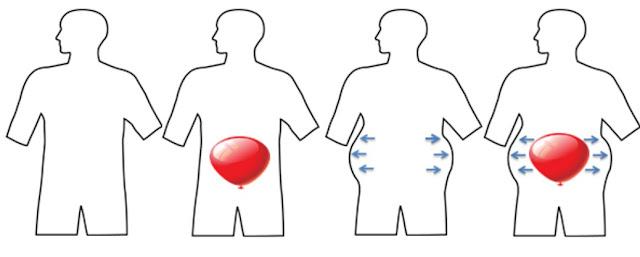Penyebab Perut Kembung orang dewasa anak