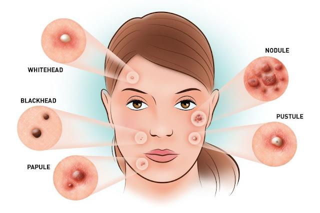 Type of acne jenis jerawat
