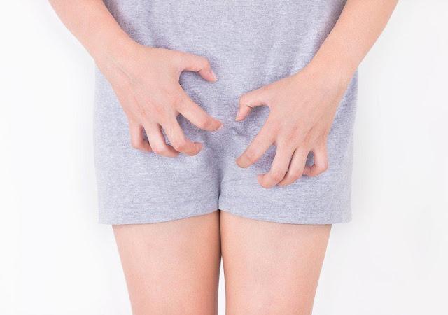 Keputihan dan Gatal pada Area Kewanitaan? Ternyata Inilah Penyebab Keputihan Gatal