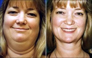 facial exercise for double chin