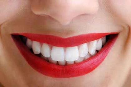 7 Cara Sederhana Memutihkan Gigi Secara Alami dan Permanen