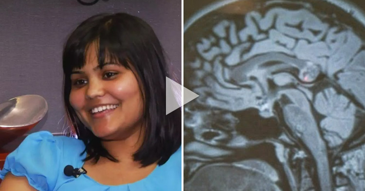 'Evil twin sister' found in a woman's brain during surgery