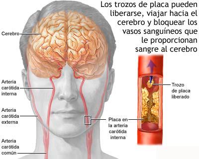 accidente cerebrovascular sintomas de diabetes