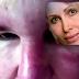 """Mujer ve su rostro """"derretir"""" después de tratamiento estético"""