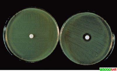 O/129 Susceptibility test for Vibrio sp. Left, Resistant; right, susceptible.