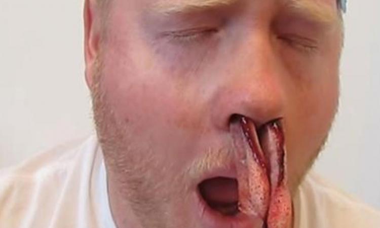 Cet homme avait des d mangeaisons dans les sinus mais ce for Interieur du nez