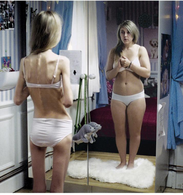 Eating Disorder Teen 6