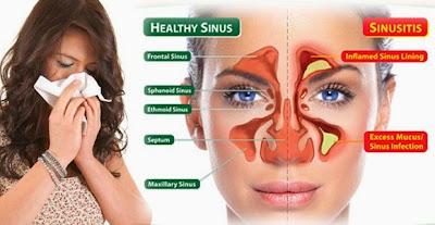 cara ampuh mengatasi sinusitis