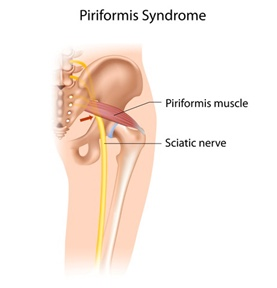Piriformis Syndrome Lingers On