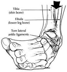 cedera pada pergelangan kaki seseorang yang mengakibatkan keseleo akut dan kronis