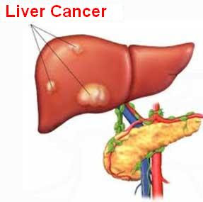 In the liver cancer is a malignant tumor in the liver Liver Cancer Signs And Symptoms, Diagnosis And Treatment