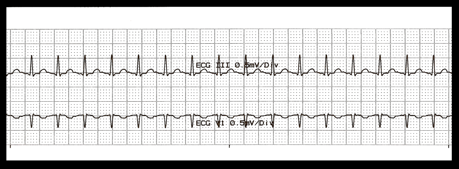 Float Nurse: Practice EKG Strips 309