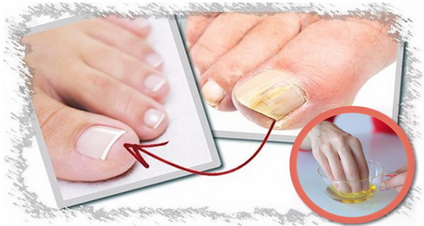 "Use the ""destroyer of fungi"" to remove nail mycosis!"