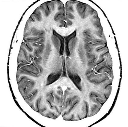 ЯМР мозък